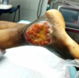 Varicose Vein Untreated